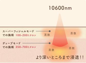 CO2フラクショナルレーザーの効果