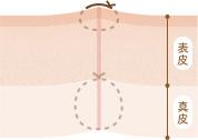 患部の縫合