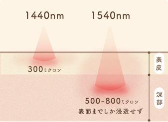 非蒸散型フラクショナルレーザーの効果