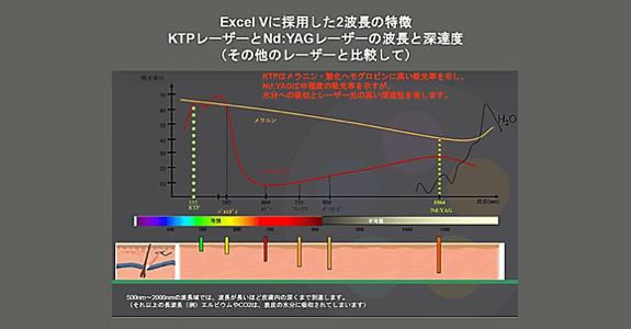 エクセルVの特徴
